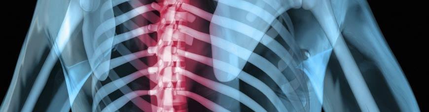 Posture du corps et ostéopathe